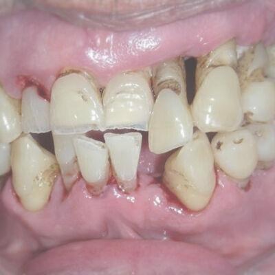 Parodontite_01