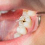 walter devoto dentista carie