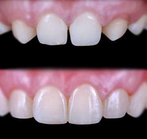 estetica dentale dentista devoto