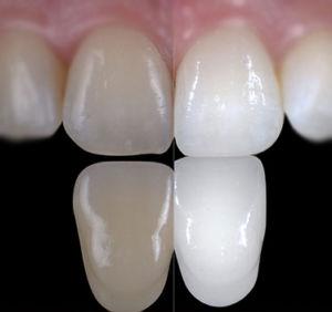 sbiancamento dentista genova