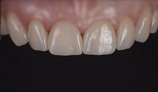 denti ceramica walter devoto