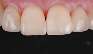 ceramica genova dentista sbiancamento