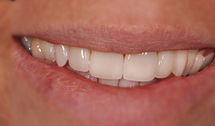 ceramica sorriso dentista