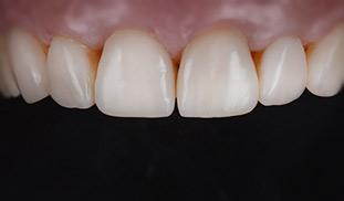 estetica dentale sbiancamento denti genova