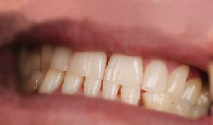 composito diretto devoto dentista estetica