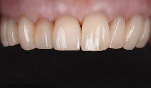 denti bianchi sani ricostruiti