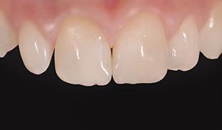 ricostruzione denti genova