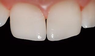 dentista denti sani genova