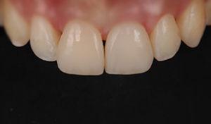 faccette denti walter devoto