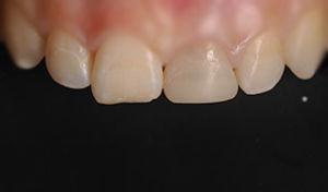 denti piccoli