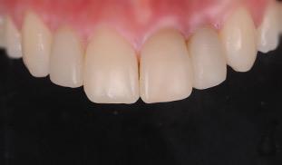 faccette sorriso denti bianchi