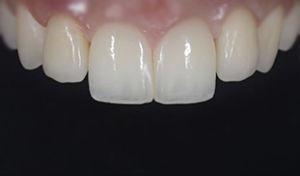 impianto devoto valter dentista