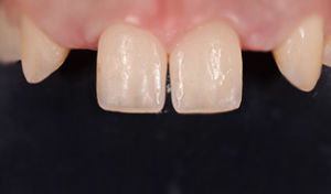 impianto protesi dentale