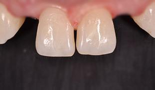 intarsi protesi dentale devoto valter
