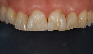 prima walter devoto dentist style italiano