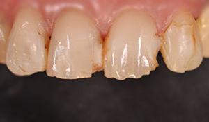 ceramica walter devoto dentista genova