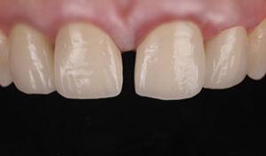 diastema ceramica dentista devoto