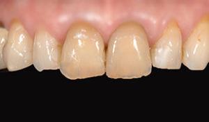 prima trattamento in ceramica dentisti conservativa