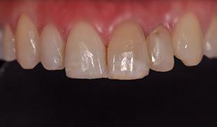 faccette dentali prima trattamento