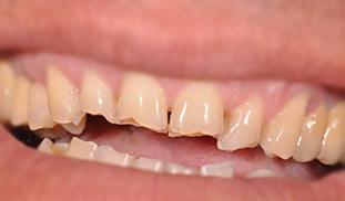 composito diretto denti rotti