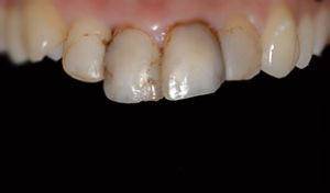 dentista denti neri