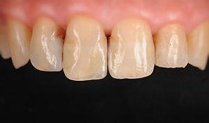 prima composito diretto santa margherita ligure dentista