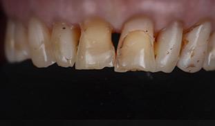 denti neri rovinati